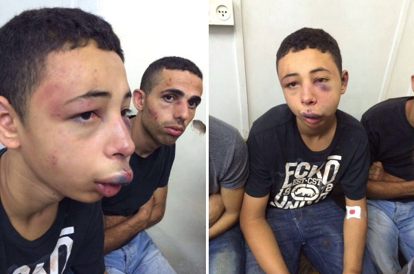 Fifteen-year-old Tariq Abukhdeir after being beaten by Israeli police
